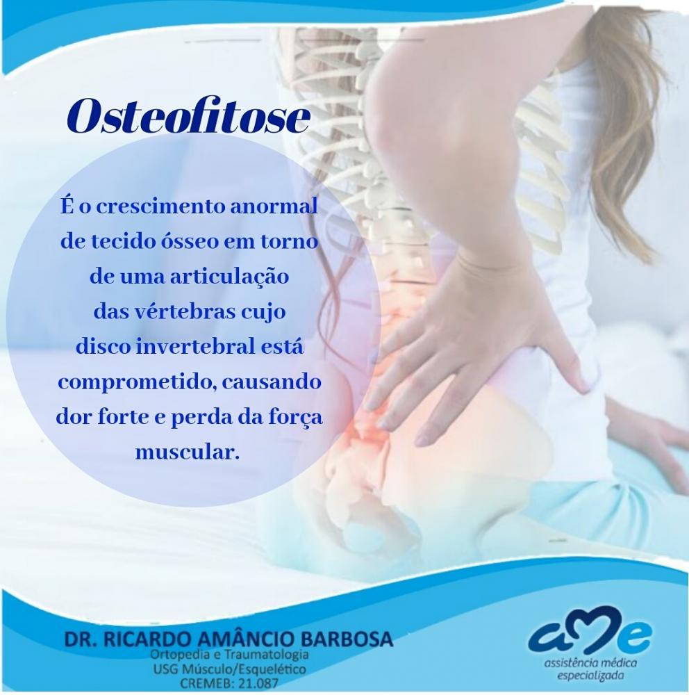 Drº Ricardo Barbosa ortopedista e traumatologista explica o que é Osteofitose