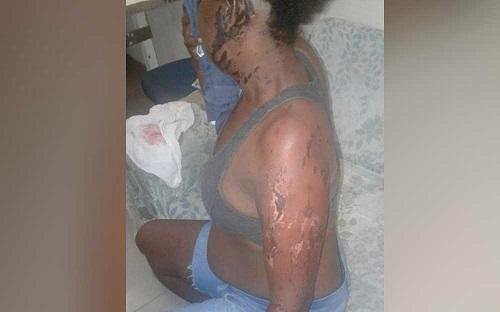 Mulher é atacada com ácido por ex-namorado após término de relação