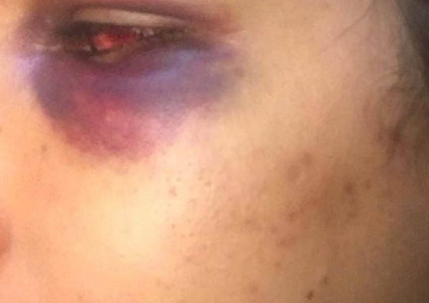 Jovem denuncia agressão de ex-marido filho do prefeito de Salinas da Margarida