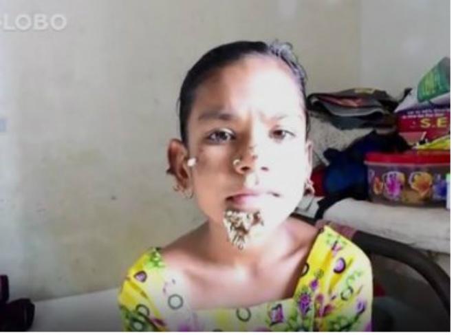 Menina de 10 anos pode ser primeira mulher com síndrome do 'homem-árvore'