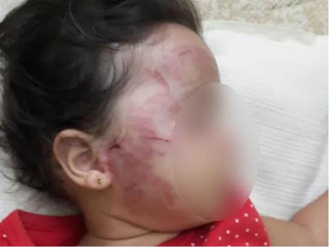 Bebê de 11 meses tem rosto desfigurado por criança de 2 anos em berçário de creche