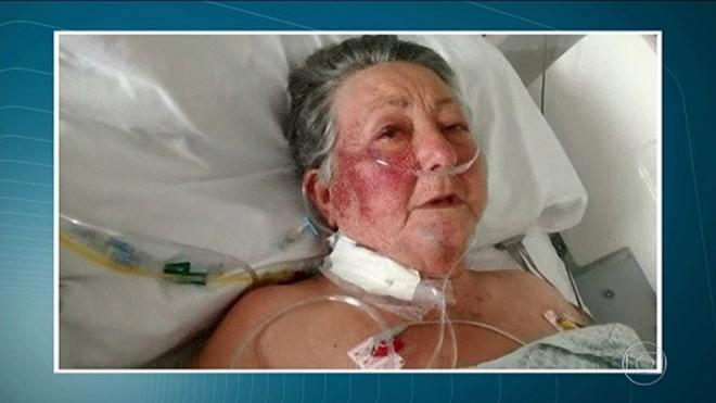 Morre idosa agredida por enfermeiro em hospital